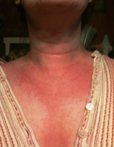Rode vlekken op huid door stress
